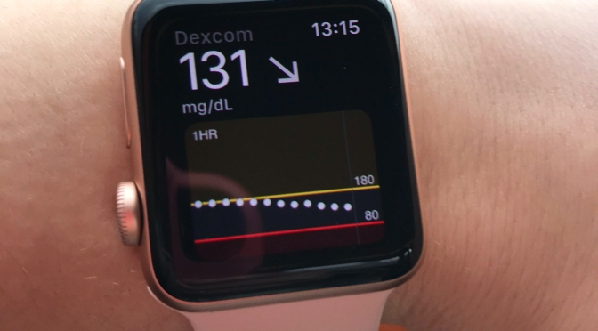 Dexcom: initial excitement